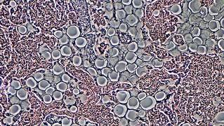 white adipocytes
